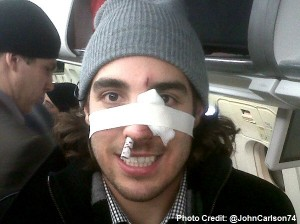 Mathieu Perreault's broken nose